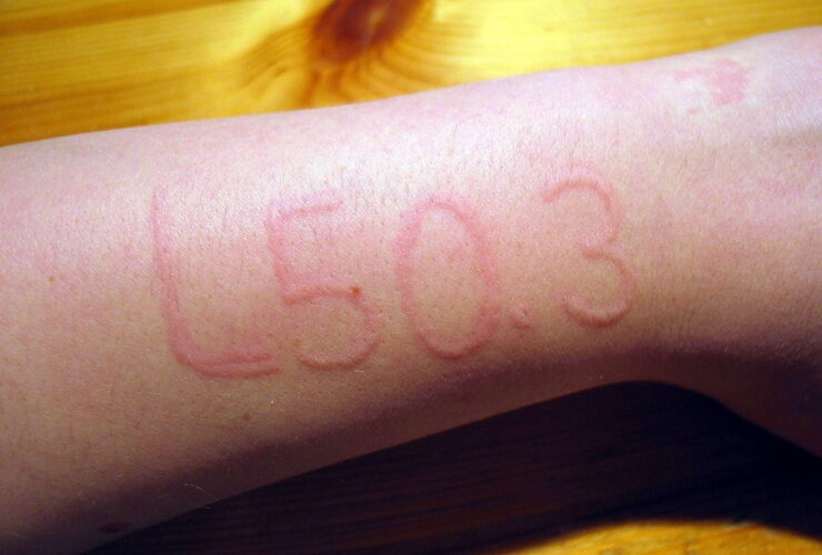 Get rid of Dermatographia with these steps